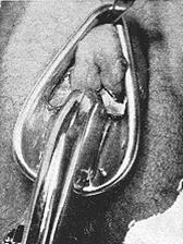 Rathmann's clamp in place, isolating the clitoral hood